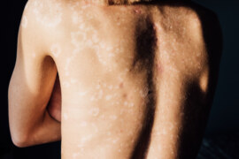 Drop Everything For A Psoriasis Diagnosis