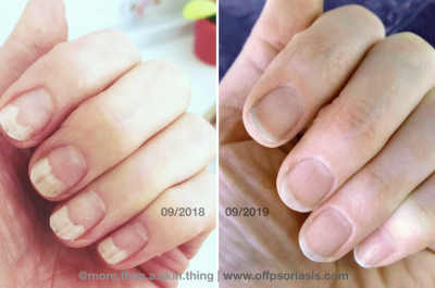 She Healed Her Nail Psoriasis Naturally