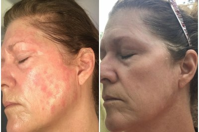 Leanne's Psoriasis Journey