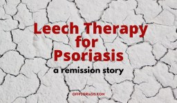 Psoriasis Remission with Medicinal Leeches