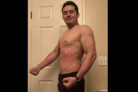 Oswaldo's psoriasis story