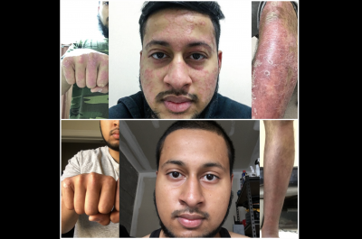 Mohammed's Psoriasis Journey