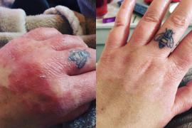 Charlotte's Psoriasis Journey