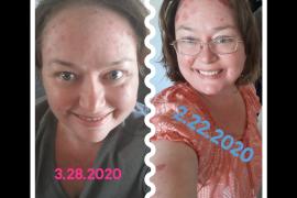 Heather's Psoriasis  Journey
