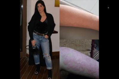 Basma's  Psoriasis Journey