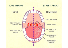 Be aware of Throat infections and address them on time to prevent Psoriasis flareup.