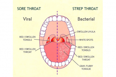 Throat Infections and Psoriasis Connection