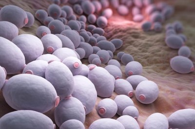 Could Candida be Worsening your Psoriasis symptoms?
