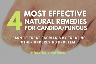 4 Most Effective Natural Remedies that treat Candida and not only…