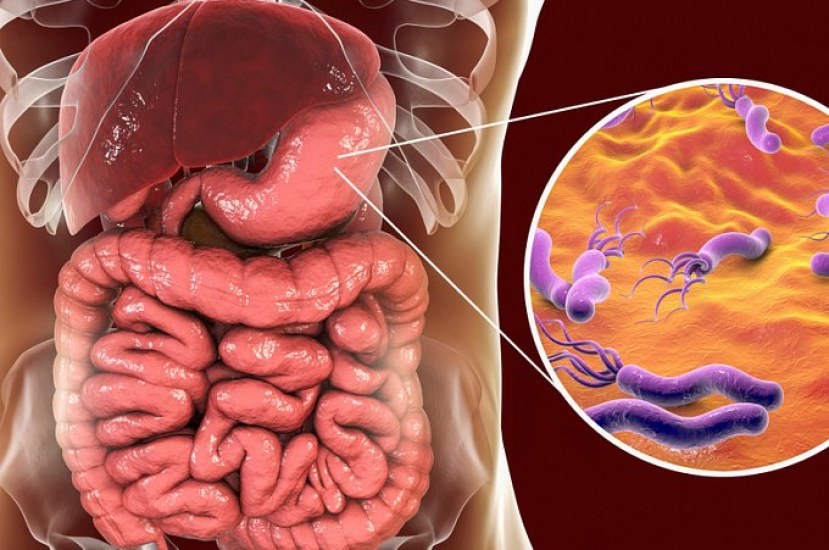 Helicobacter pylori and Psoriasis Connection