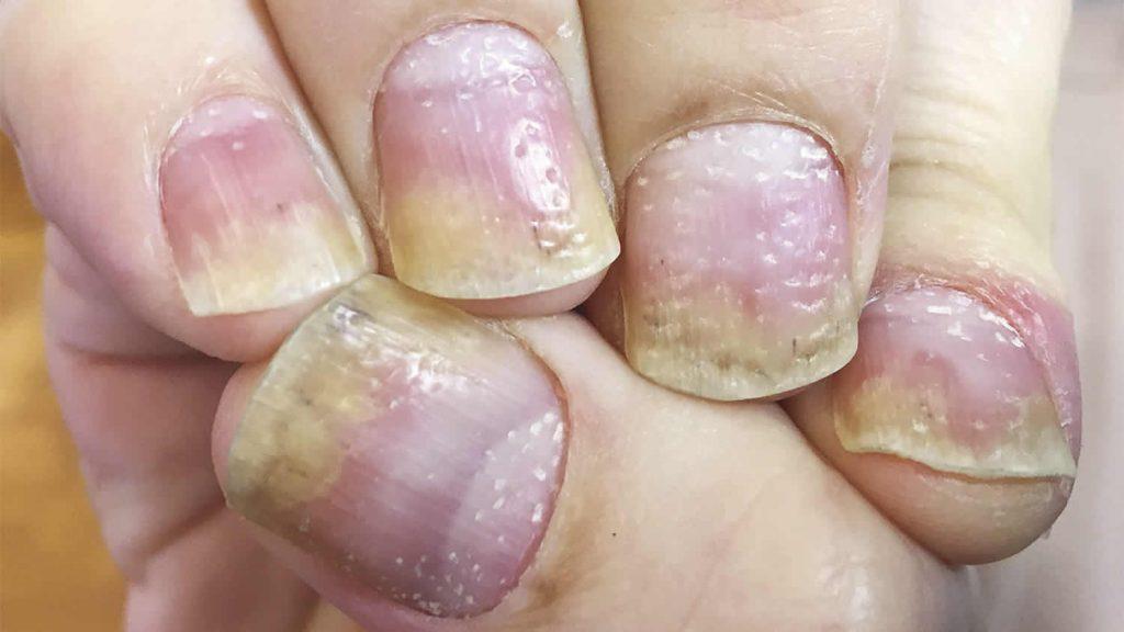 how nail psoriasis look