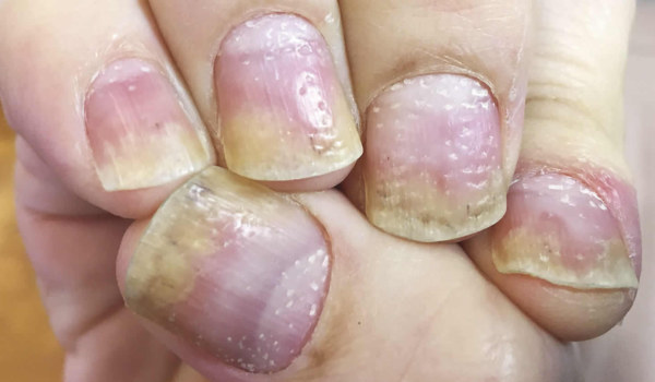 Could Candida be worsening your  Psoriasis?