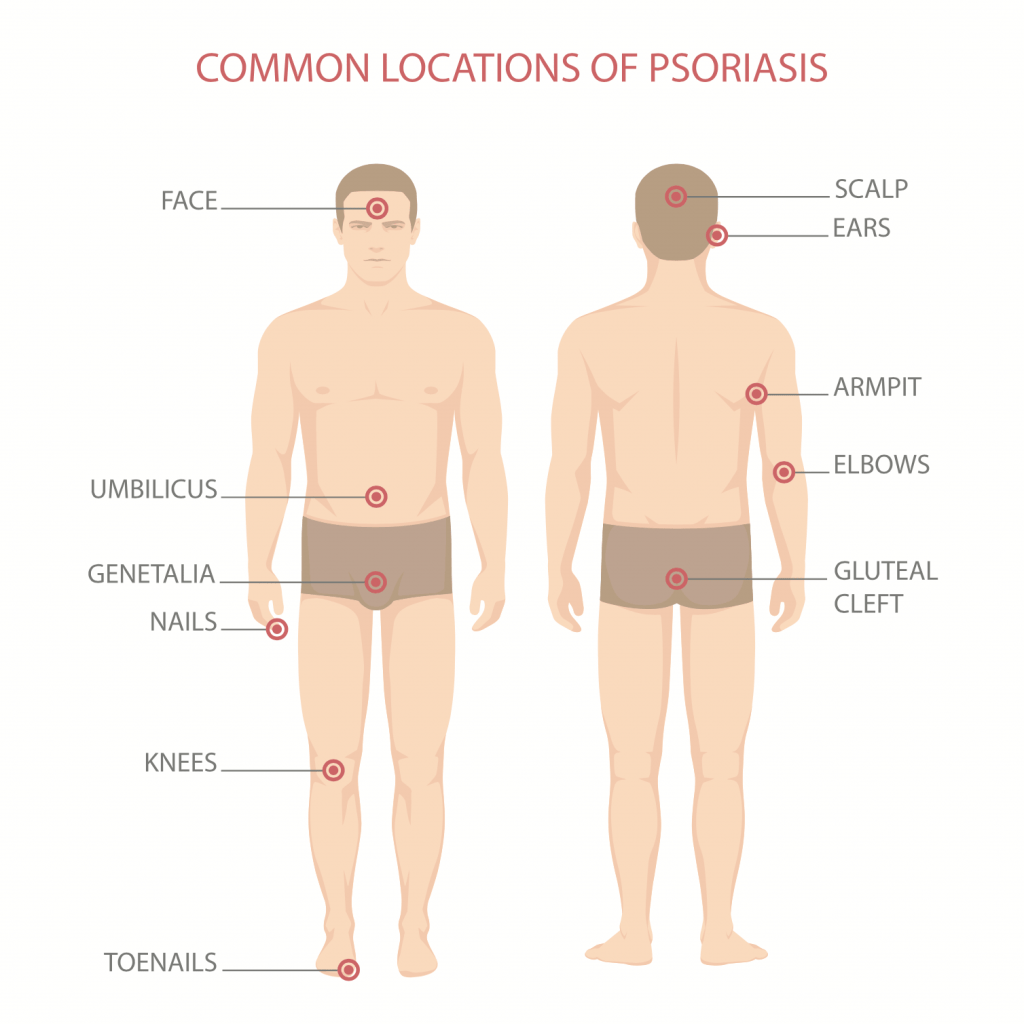 1psoriasis types offsoriasis.com natural treatment of psoriasis