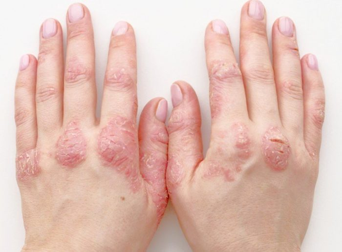 psoriatic-arthritis-how-it-looks