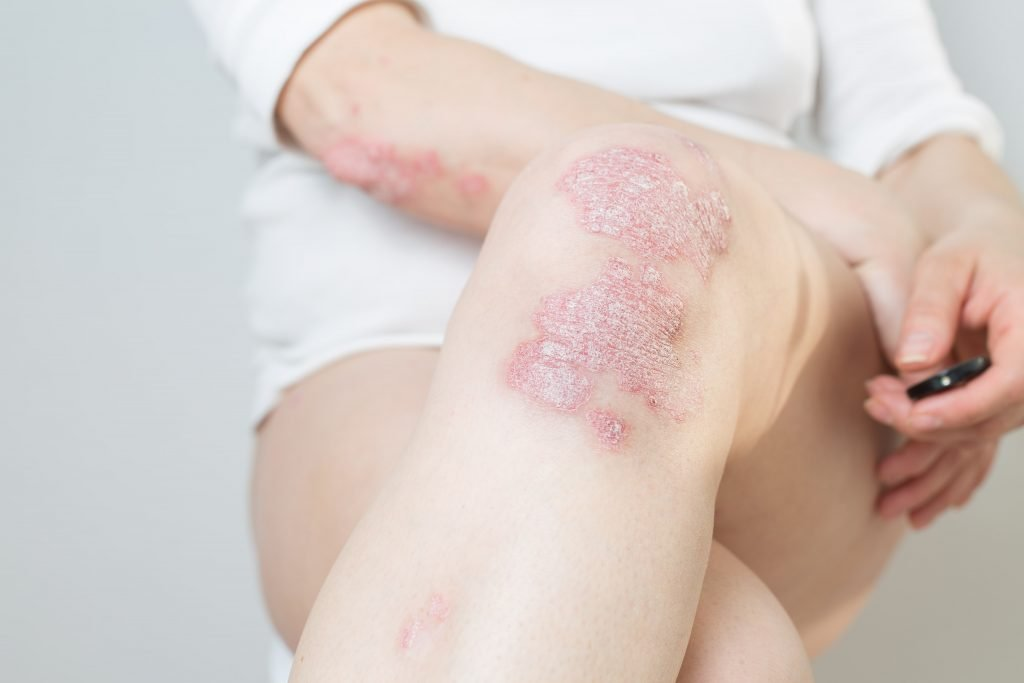 psoriasis types plaque